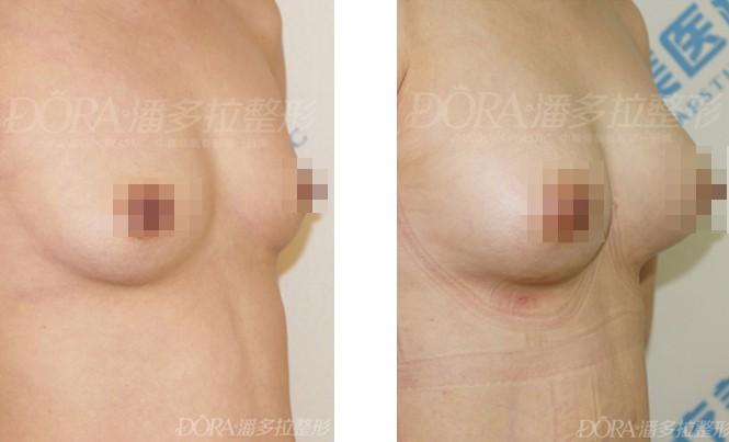 隆胸失败修复的成功案例