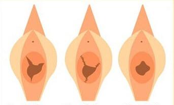 鼓楼处女膜修复成功案例