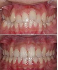 時光牙齒正畸術成功案例