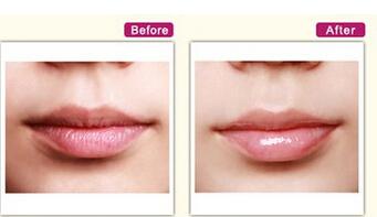 海口红妆纹唇手术真实案例