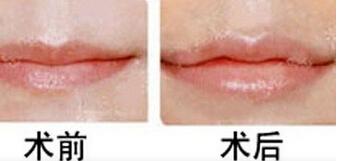 海口红妆唇珠成形术真实案例