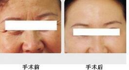 武漢一美Botox魔法針成功案例