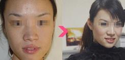 武汉维纳斯面部T区面部轮廓手术的真实案例
