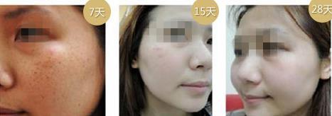 荆州中爱C8祛斑的真实案例