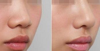 长沙星雅全自体耳软骨隆鼻的真实案例
