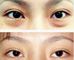 长沙星雅专业祛眼袋的真实案例