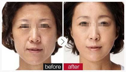 长沙晶肤面部除皱术成功案例