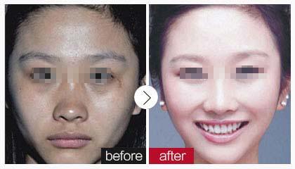 长沙晶肤光纤溶脂多久能恢复成功案例