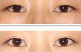 南京华美显微灵动双眼皮的成功案例