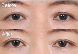 南京华美双眼皮修复术的真实案例