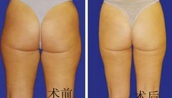 长春名韩臀部吸脂减肥的真实案例