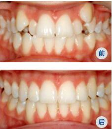 中翰全隱形無托槽牙齒矯治成功案例
