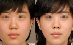 杭州藝星肉毒素注射系統的成功案例