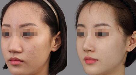 沙医生纯韩分段隆鼻术成功案例