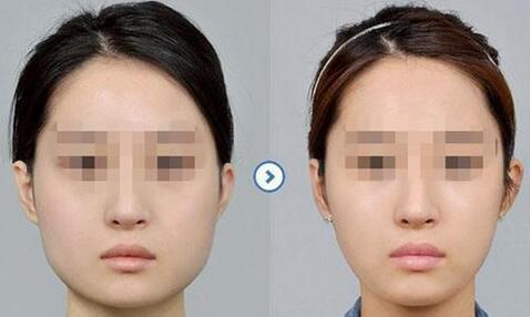 锦州下颌角整形成功案例