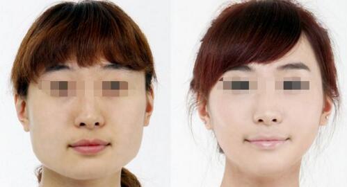丹东晶馨botox逆时紧肤瘦脸成功案例