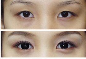丹东晶馨无痕面部轮廓手术开眼角成功案例