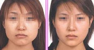 大连达美极速瘦脸针的成功案例