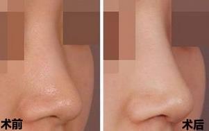 淄博阳光玻尿酸注射隆鼻的成功案例