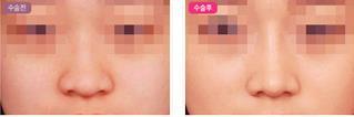 济南瑞丽柔美弧综合鼻整形的成功案例