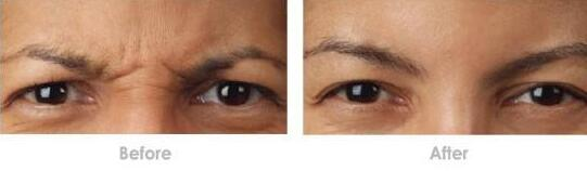 临沂卫康眼部除皱成功案例