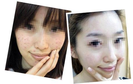 上海市东方分层祛痘美肤术的成功案例