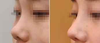 上海市东方纳米仿真隆鼻术的成功案例