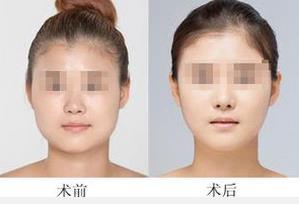 上海市东方注射瘦脸针的成功案例