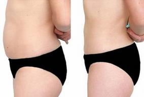 黑龙江佳木斯腹部吸脂减肥的成功案例