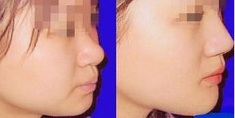 上饶韩美玻尿酸注射隆鼻的成功案例