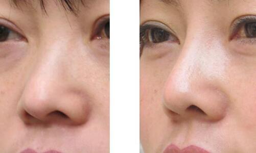周口華美鼻部綜合整形成功案例