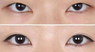 三门峡张琳医疗美容割双眼皮的心得