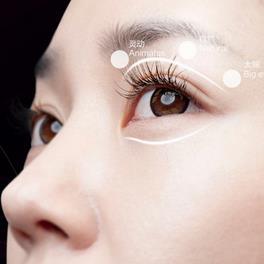 威海福神双眼皮手术的心得分享