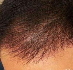 江门福康医学头发种植成功案例