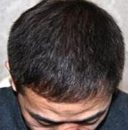 武汉伊美尚国际头发种植成功案例