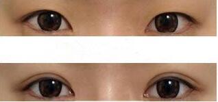 南京鼓楼光尔美双眼皮成形术成功案例