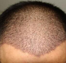 武汉都市女子整形头发种植真实案例