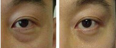 临沂咖美光波祛眼袋的真实案例