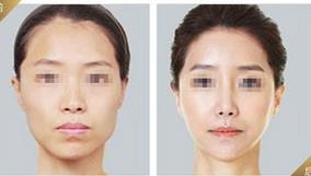 临沂咖美瘦脸针的真实案例