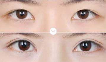 枣庄丽华灵动媚眼双眼皮成功案例
