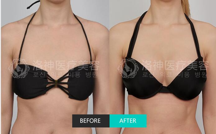 洛神科尔曼脂肪移植技术成功案例