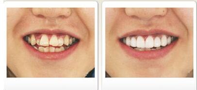 洛神牙齿整形成功案例