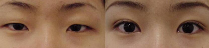 菏泽华美双眼皮手术成功案例