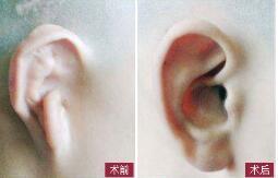 耳部整形成功案例