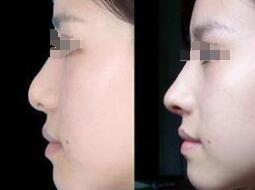 成都驻颜假体隆鼻成功案例