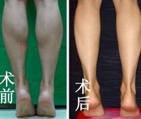 成都驻颜注射瘦腿成功案例