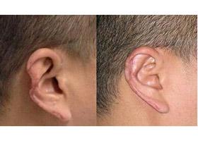 全耳再造成功案例