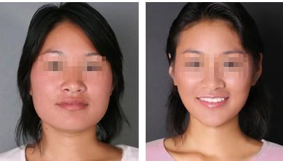 北京王府井医院下颌角整形,尖尖下巴年轻了10岁