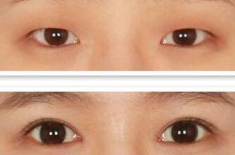北京偉力·嘉美信開眼角手術成功案例