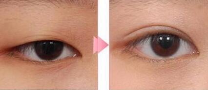 北京偉力·嘉美信雙眼皮手術成功案例